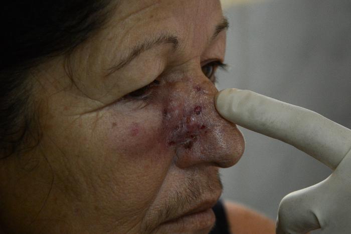 La lesión de Margarita se ha reducido, incluso, sin terminar las sesiones de aplicación del producto cubano.